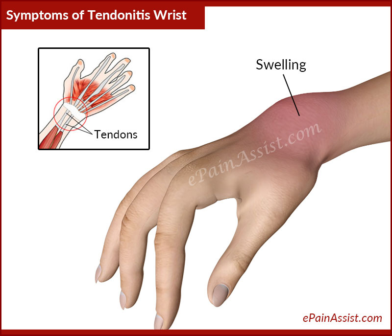 Signs and Symptoms of Tendonitis Wrist or Wrist Tendinitis