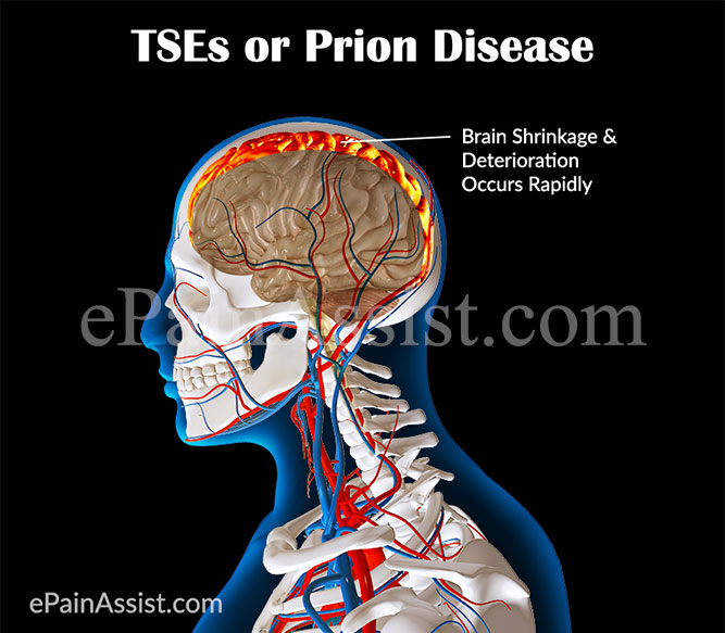 What Are TSEs Or Prion Diseases ?