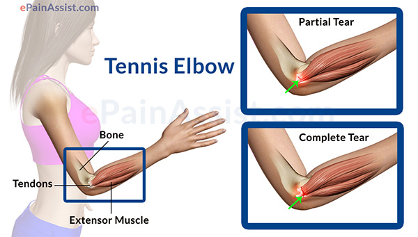 Tendon Injuries
