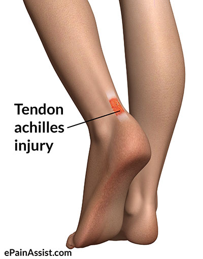 Achilles Tendonitis Old Running Shoes