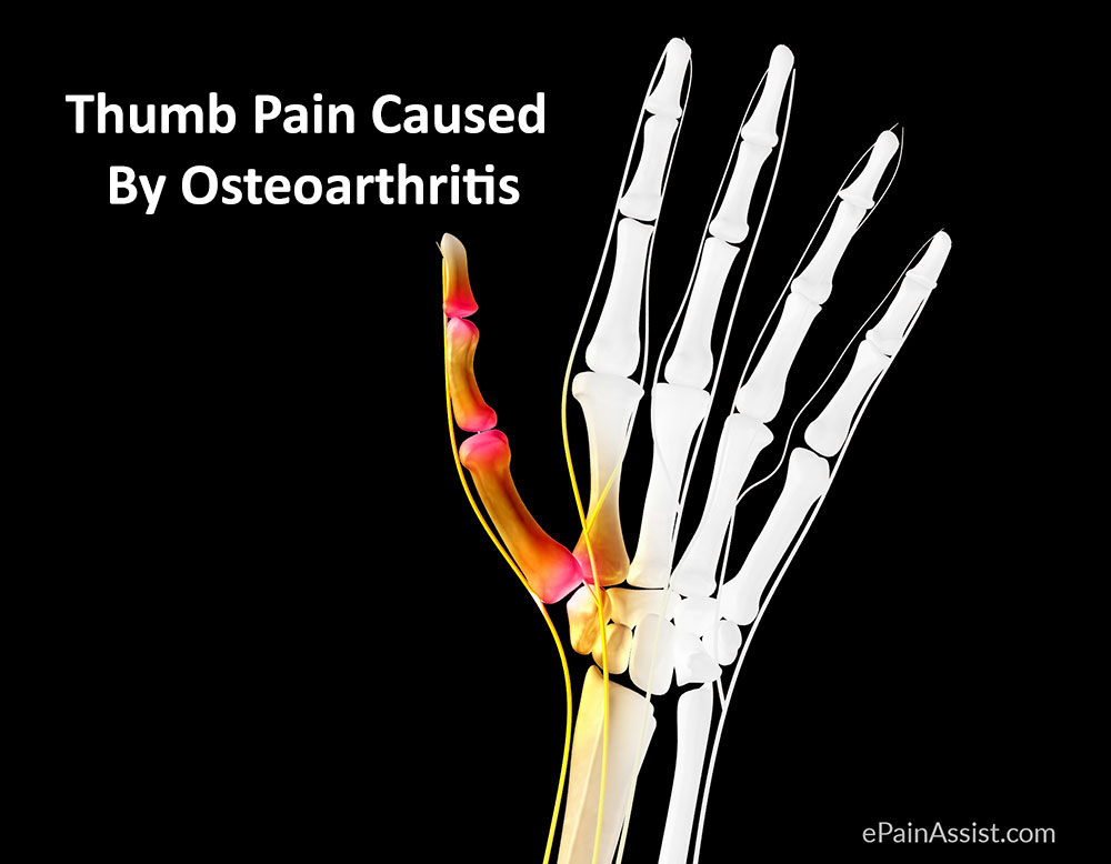 Thumb Pain Caused By Osteoarthritis