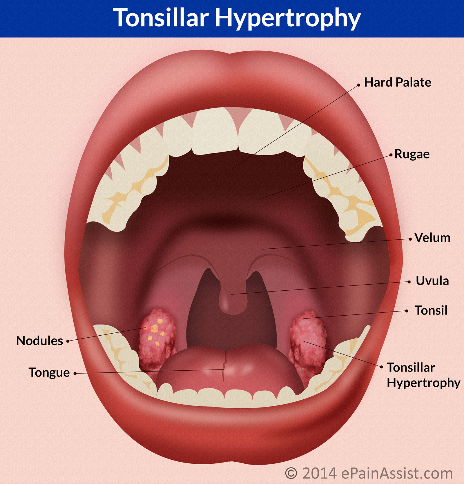 Tonsillar Hypertrophycausessymptomstreatment Antibiotics