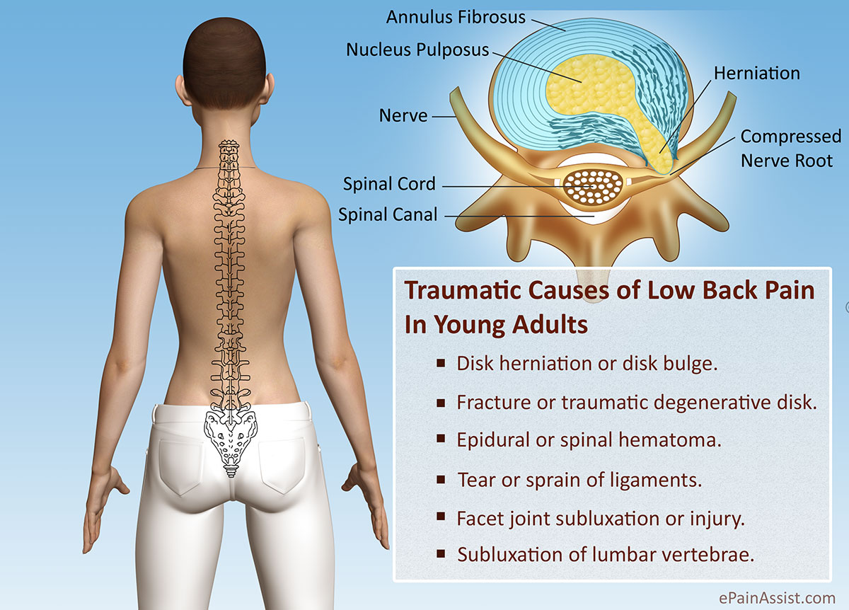 Traumatic Causes Of Low Back Pain Or Back Discomfort In Young Adults