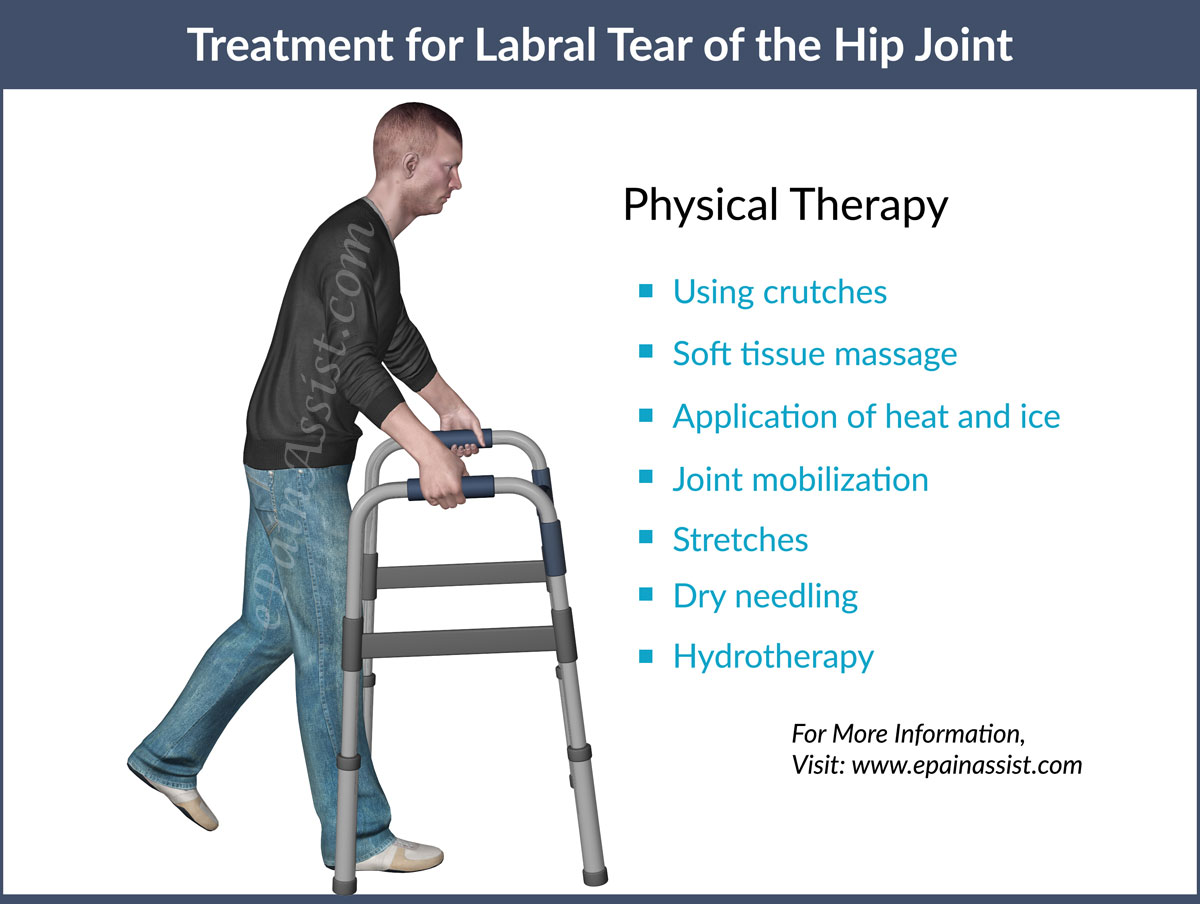 Treatment for Labral Tear of the Hip Joint