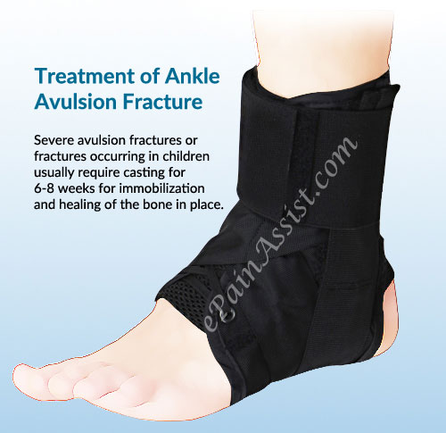 Ankle Avulsion Fracture|Symptoms|Causes|Treatment|Recovery ...