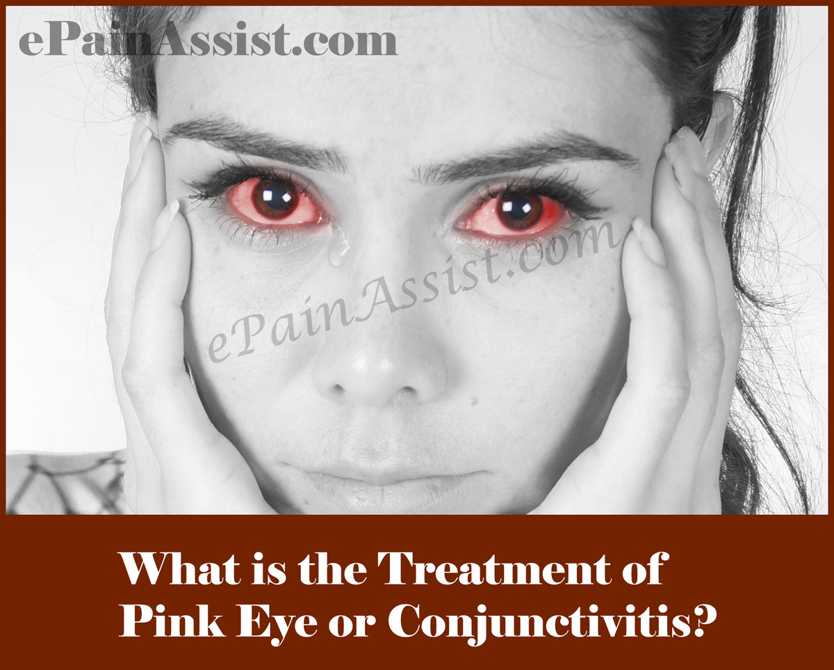 Pink Eye or Conjunctivitis: Symptoms, Causes, Treatment-Bacterial, Viral, Allergic