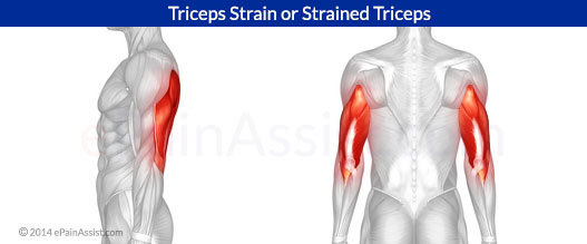 Triceps Strain or Strained Triceps