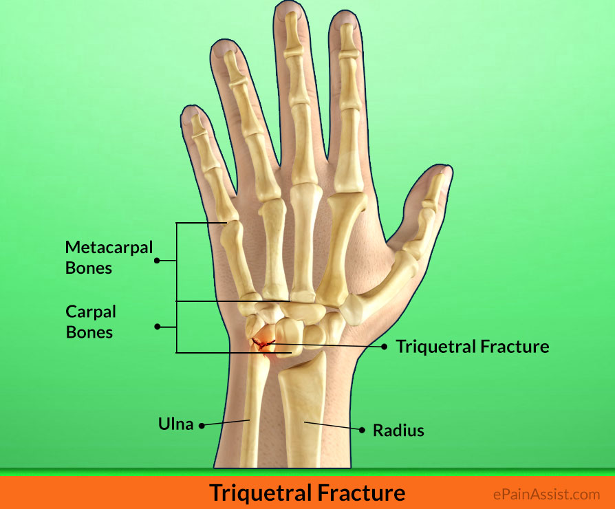 Triquetral Fracture Treatment Exercises Causes Symptoms Signs