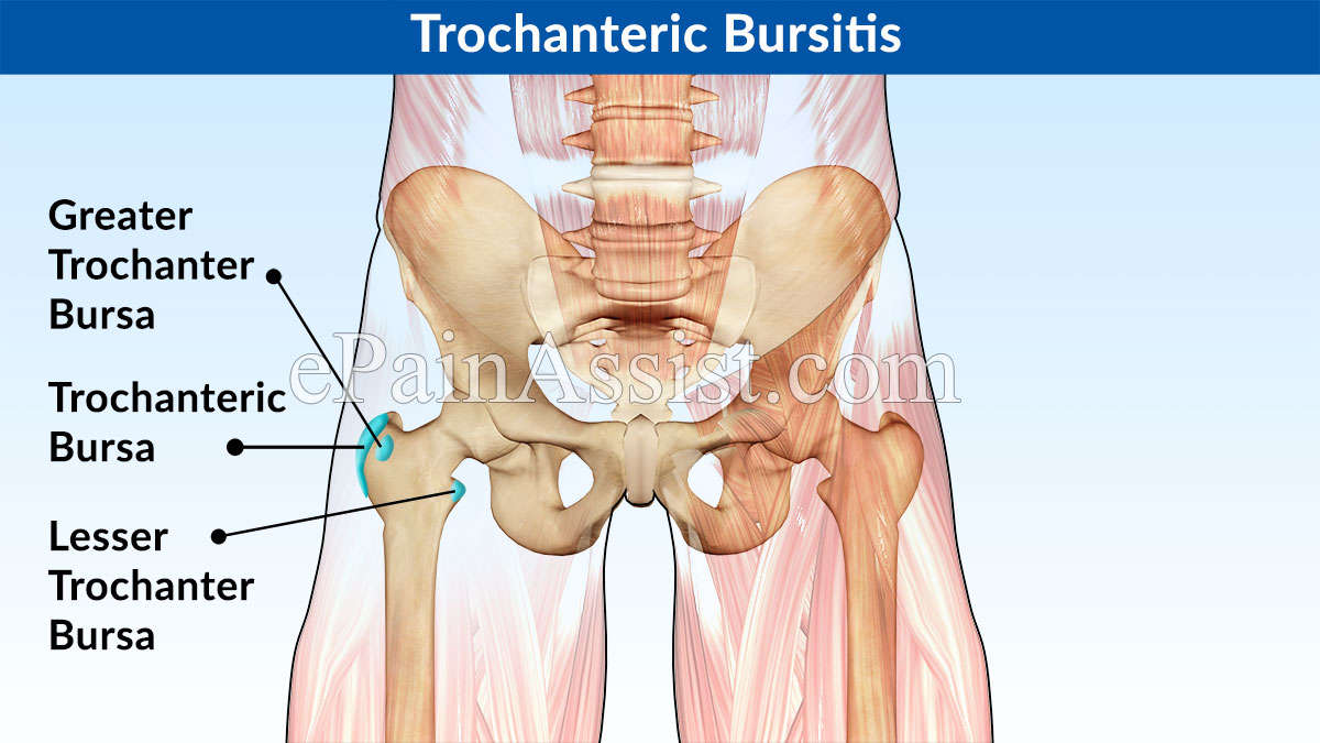Massage Therapy for Trochanteric Bursitis|Benefits, Soft