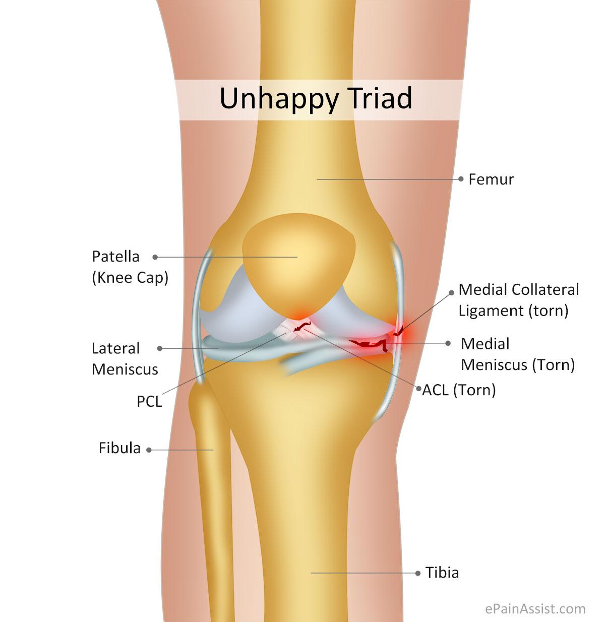 Unhappy Triad Or Blown Knee Or Terrible Triad