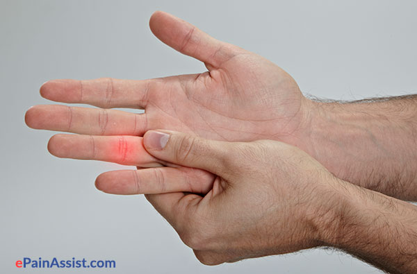 Volar Plate Injury or Jammed Finger