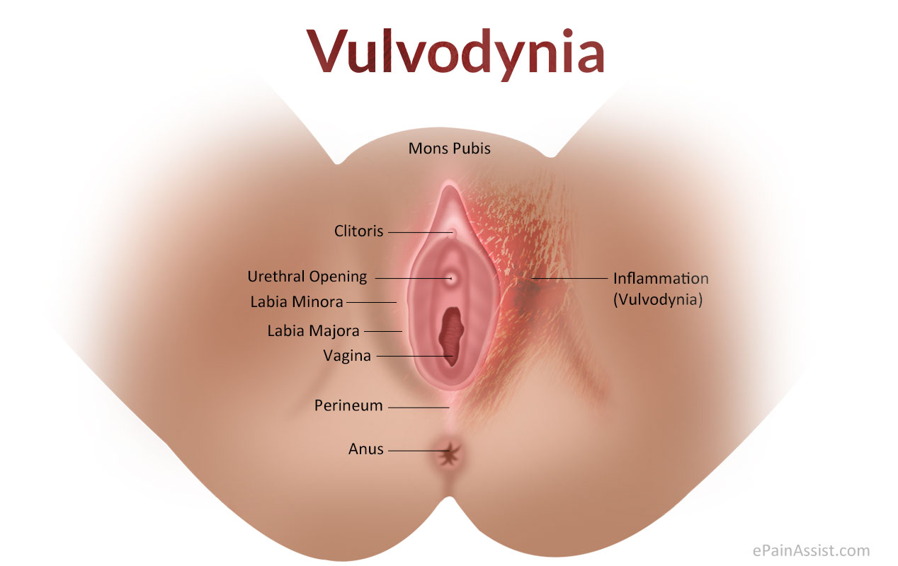 pain in and around my vagina