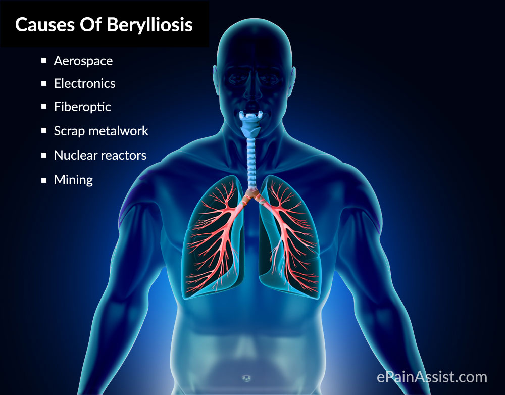 What Are The Causes Of Berylliosis?