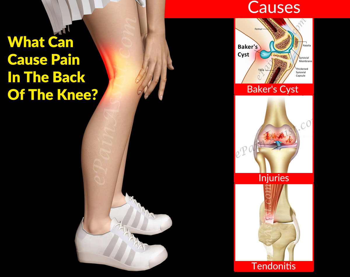 What Can Cause Pain In The Back Of The Knee