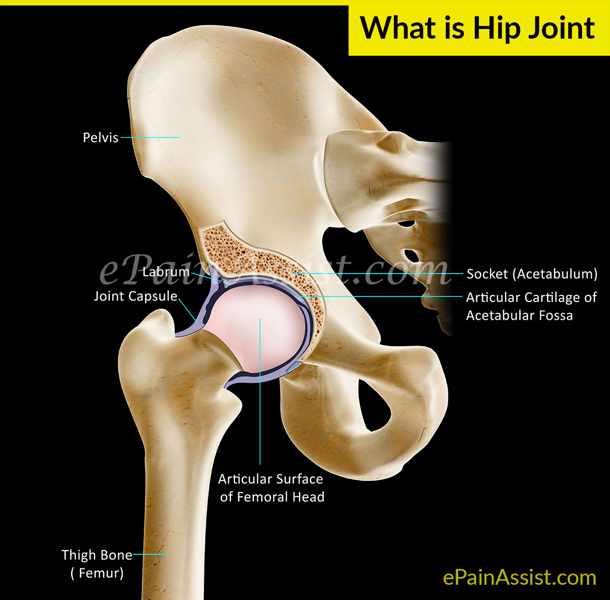 What Causes Hip Joint Pain or Acetabulofemoral Joint Pain?
