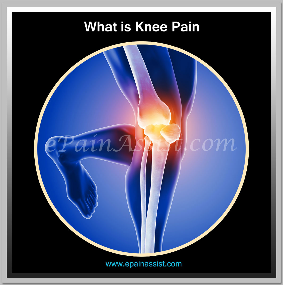What is Knee Pain and Home Remedies for Knee Pain!