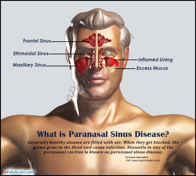 Paranasal Sinus Diseasecausessymptomstreatmentprognosisprevention