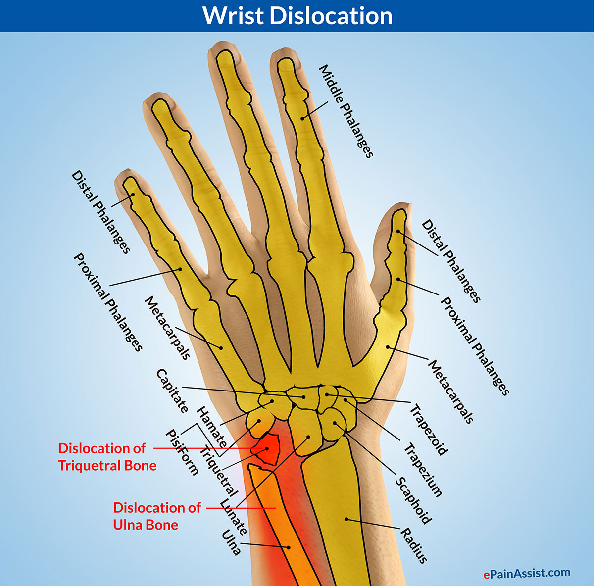 Wrist Dislocationtypescausessignssymptomstreatmentexercises