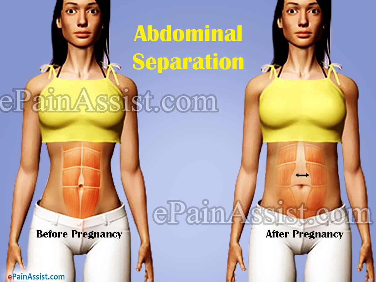 Abdominal Separation|Causes|Symptoms|Treatment|Exercise ...