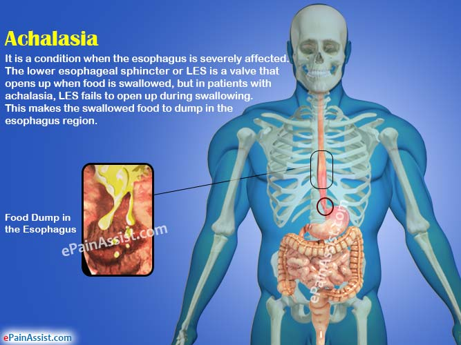 how to get rid of food stuck in esophagus