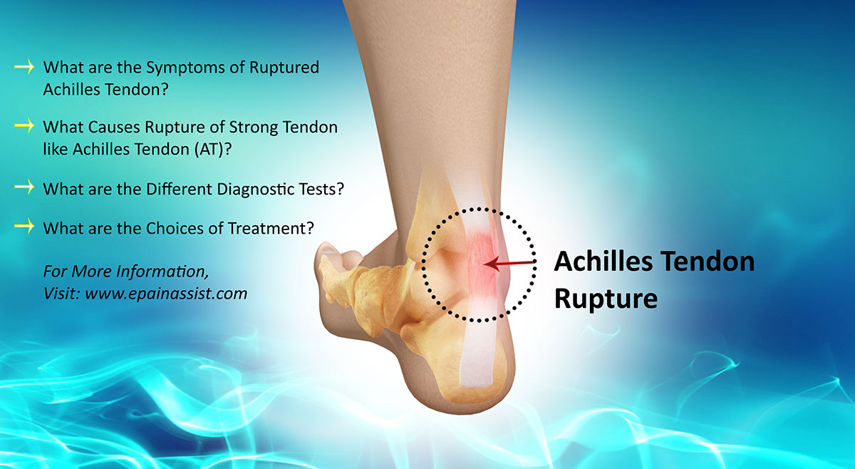 Is Achilles Tendon Rupture a Common Injury|Causes, Symptoms ...