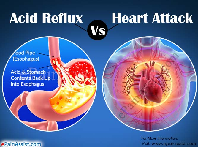 Acid Reflux Vs Heart Attack