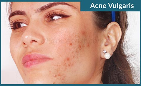 Home Remedies For Pimples On Face And Back