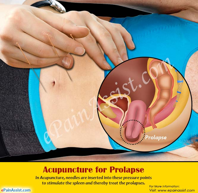 Acupuncture for Prolapse