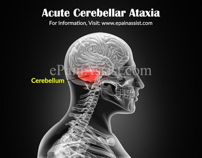 what is acute cerebellar ataxia|causes|symptoms|treatment, Skeleton