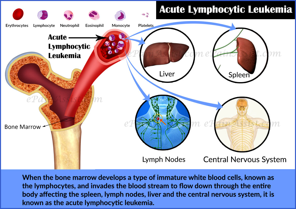 acute adult leukemia lymphocytic