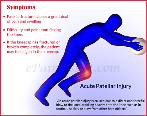 Symptoms of Acute Patellar Injury