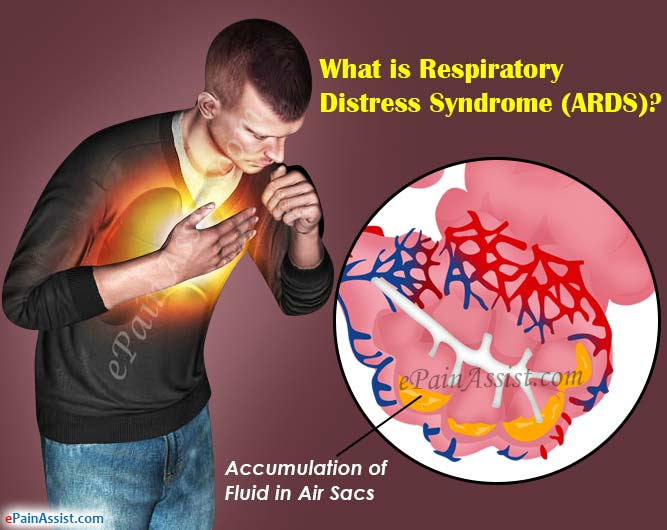 What Is Respiratory Distress Syndrome (ARDS)?