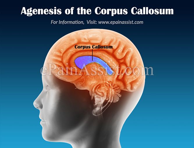 What is Agenesis of the Corpus Callosum & How is it Treated?