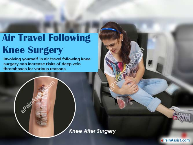 Air Travel Following Knee Surgery