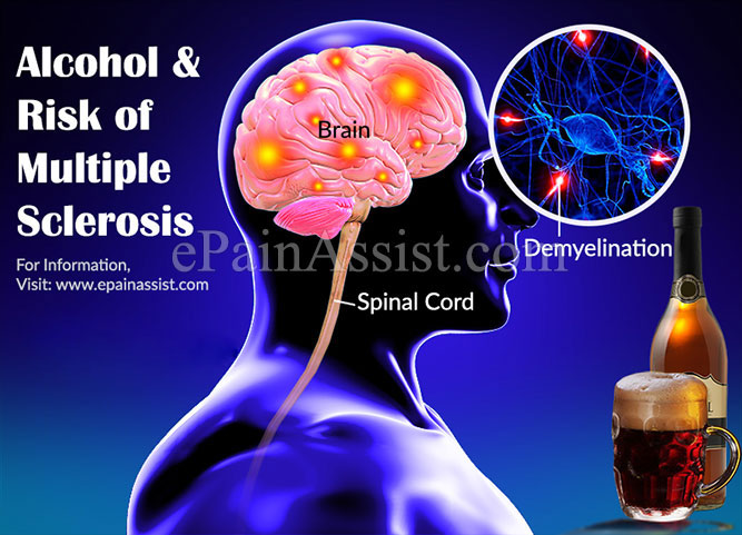 Alcohol and Risk of Multiple Sclerosis