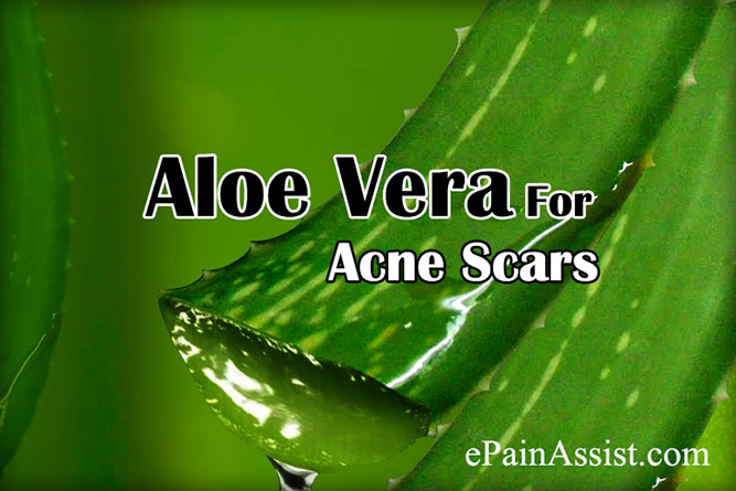 Aloe Vera for Acne Scars