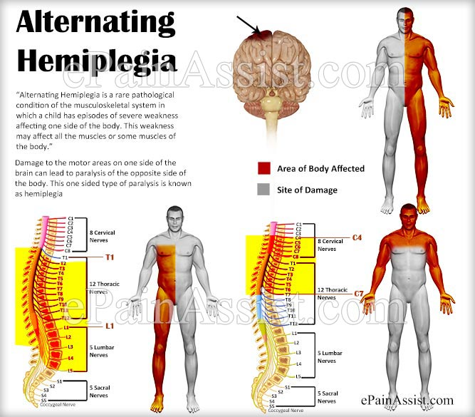 What is Alternating Hemiplegia?