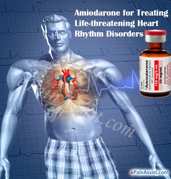 How Effective is Amiodarone in Treating Life-threatening Heart Rhythm Disorders?