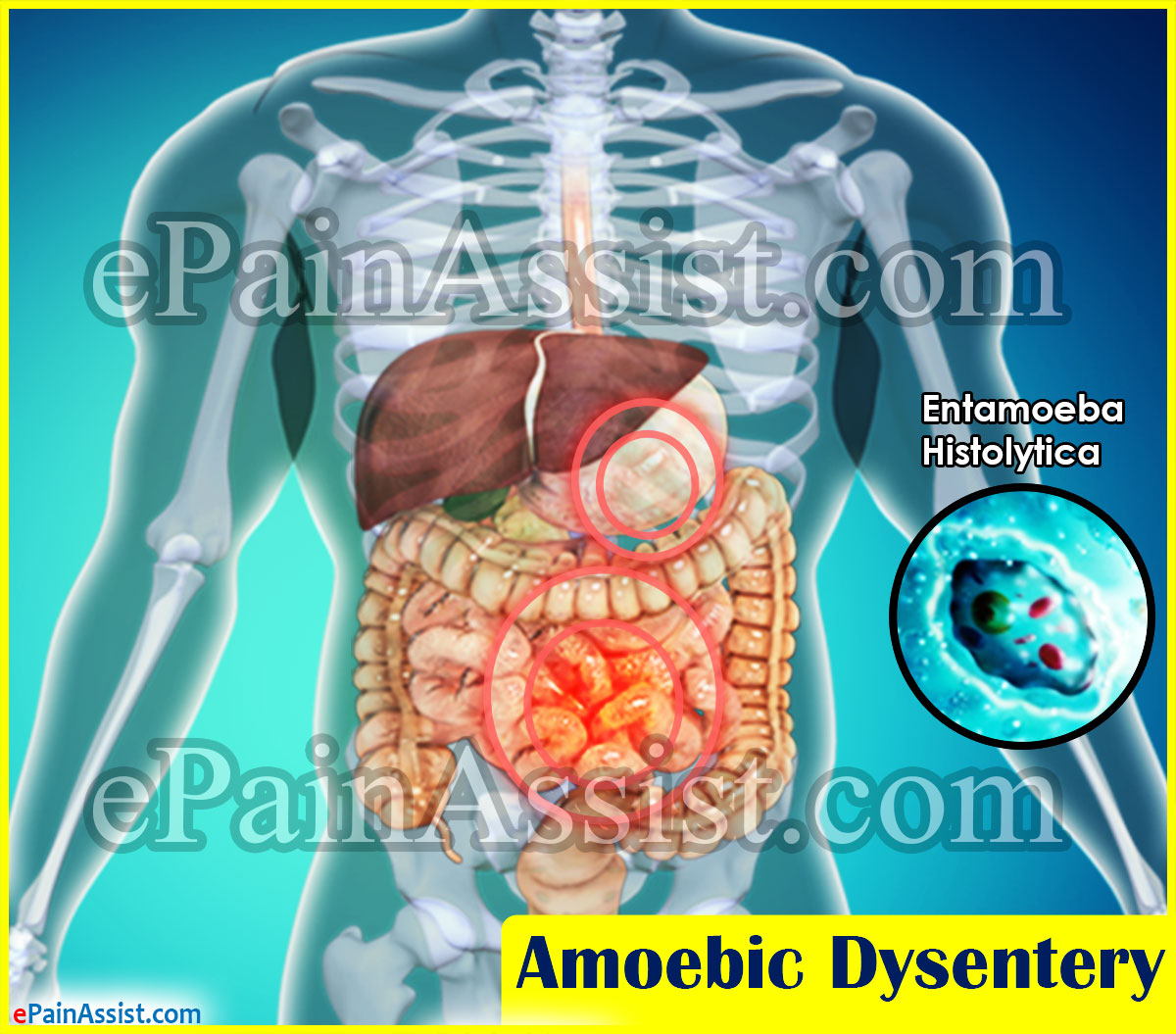 the causes and symptoms of amebic dysentry The possible causes of dysentery include a parasitic amoeba called entamoeba histolytica or a number of bacteria, including shigella and salmonella an infection of e histolytica is called amebiasis, and any resultant bloody diarrhea is called amebic dysentery.