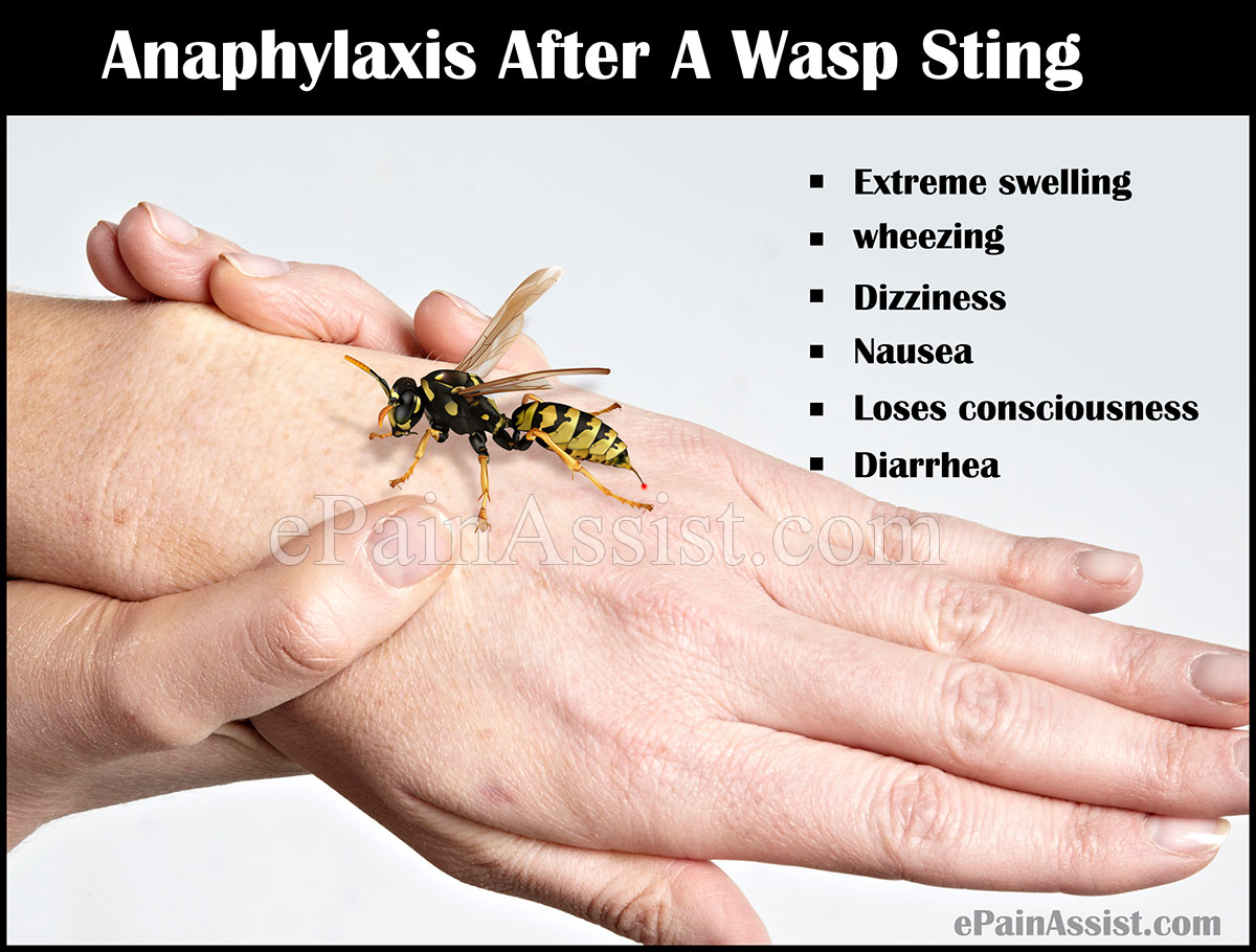 Wasp sting treatment and bee sting swelling advice ...