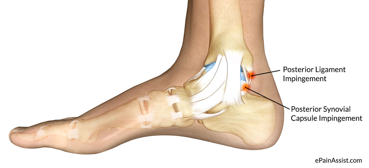 Symptoms of Posterior Ankle Impingement