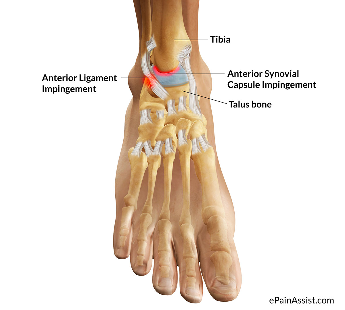 Causes of Ankle Impingement