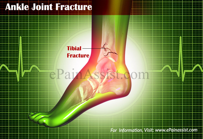for decreasing uric acid quickly home remedy for gout symptoms can gout occur in the hip