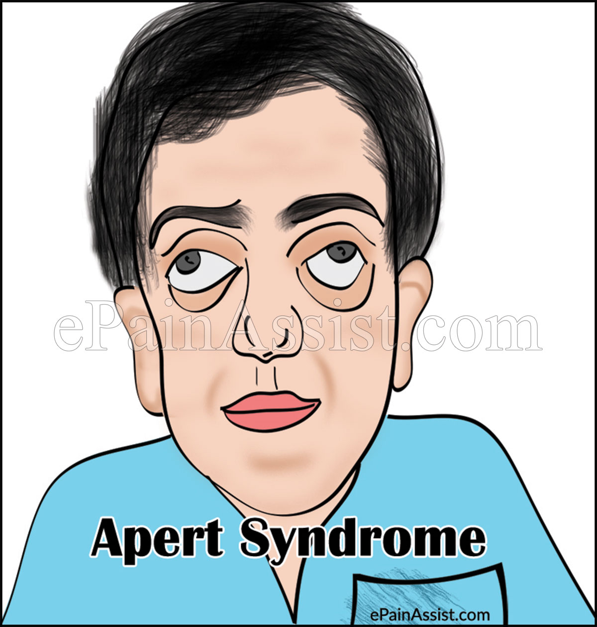 analysis of the aicardi syndrome definition symptoms and treatment