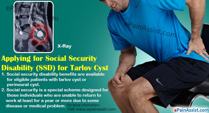 Applying for Social Security Disability (SSD) for Tarlov Cyst or Perineural Cyst