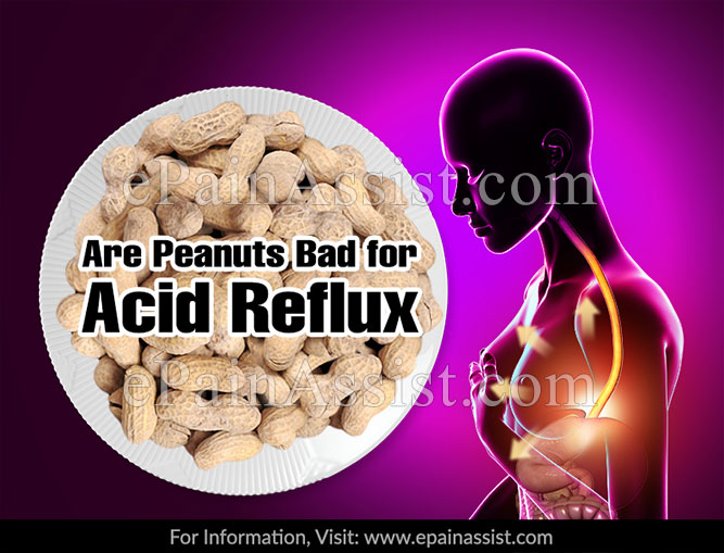 Are Peanuts Bad For Acid Reflux?