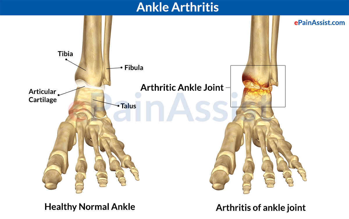 arthritis causes symptoms and treatment Learn the right steps to prevent toe arthritis and what to do if you or someone you love is effected by this disease toe joint arthritis can be helped.