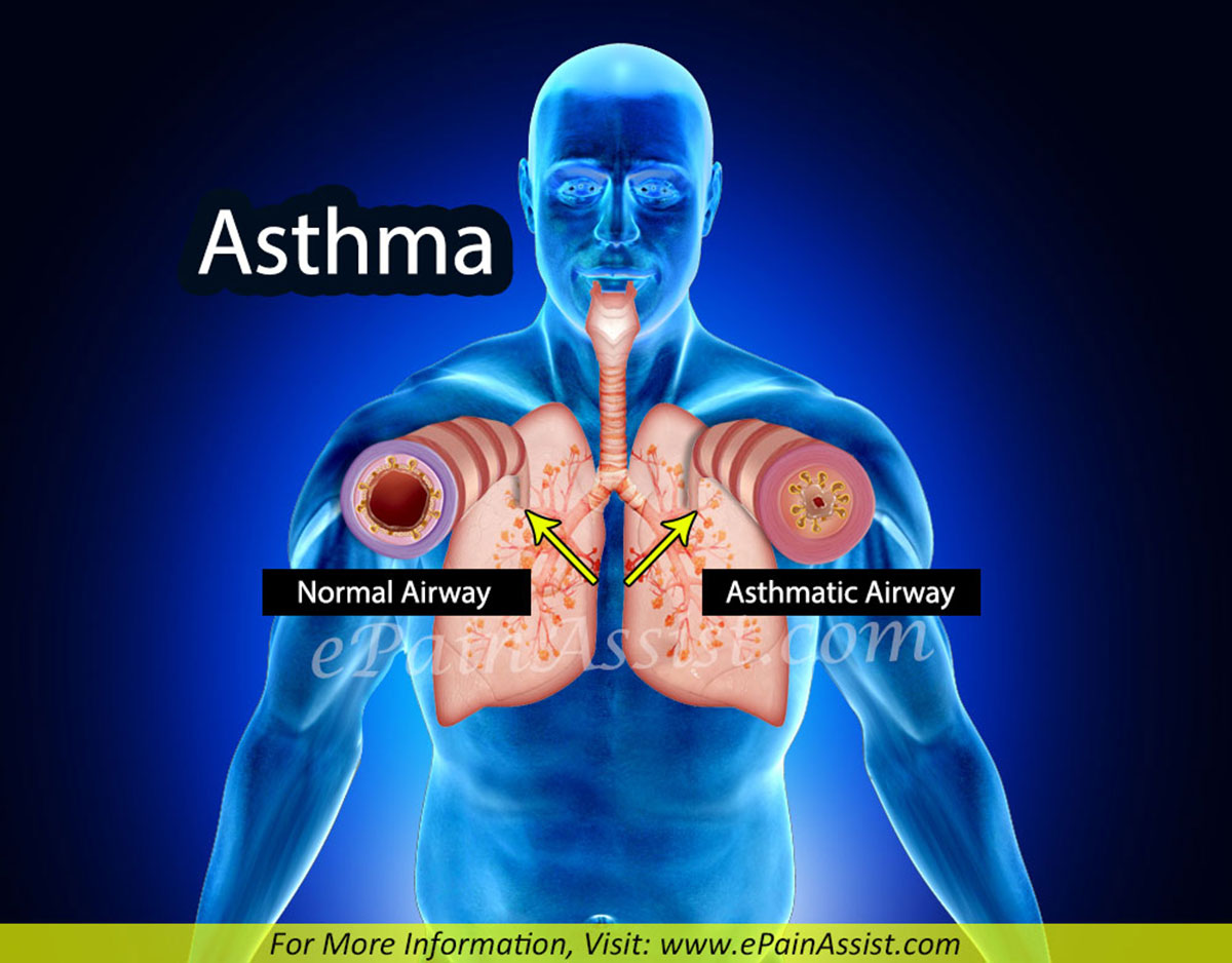 Asthma: Causes, Signs, Symptoms, Diagnosis, Treatment, Home Remedies, Prevention