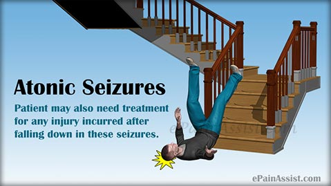 Atonic Seizures: Causes, Symptoms, Treatment, Prognosis