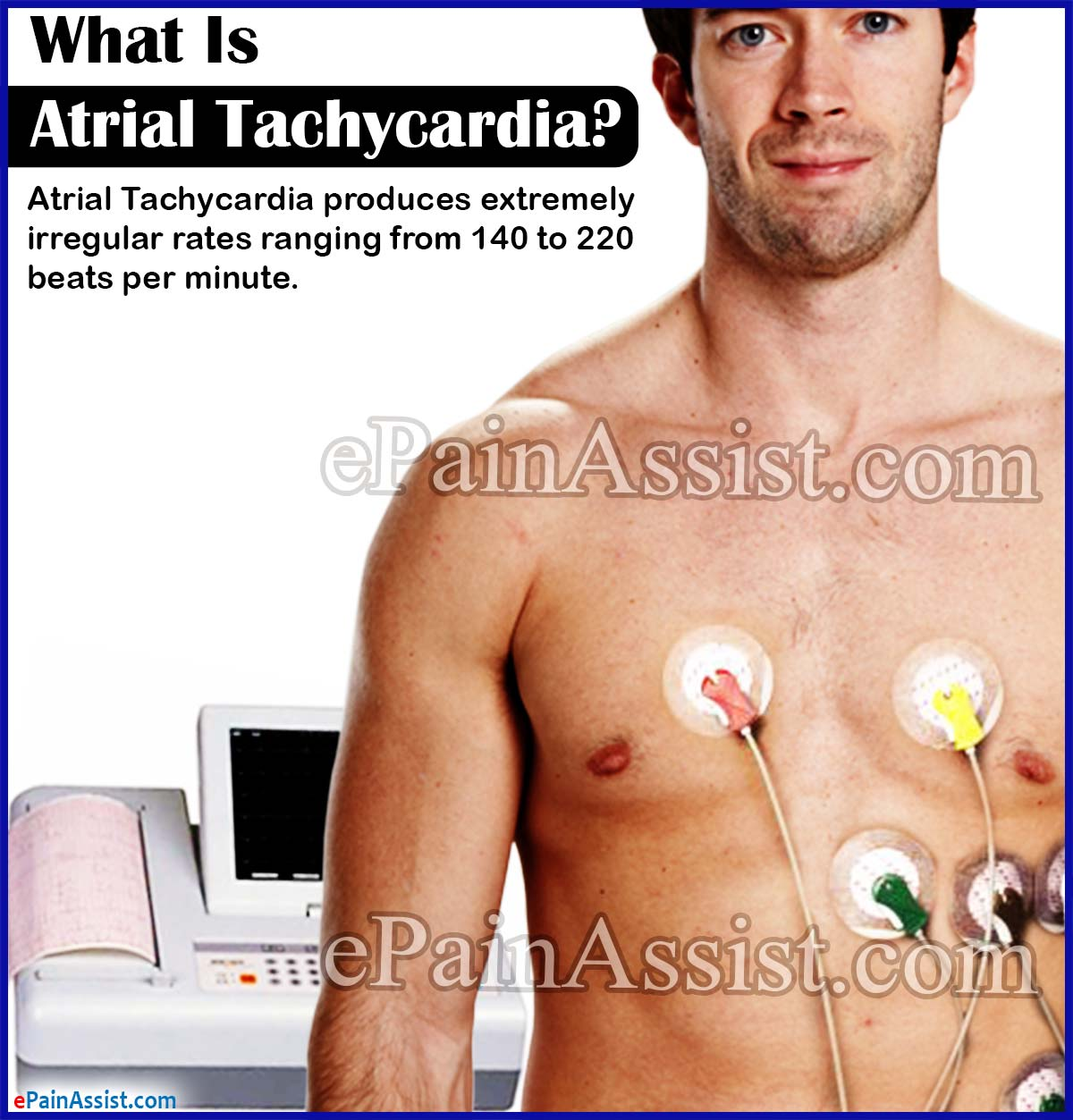 What Is Atrial Tachycardia?
